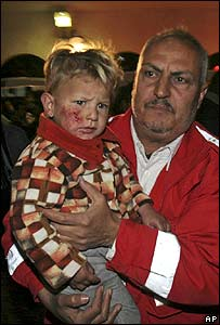 An injured Palestinian boy is carried into a Gaza City hospital after an Israeli air strike, late evening, 28 February