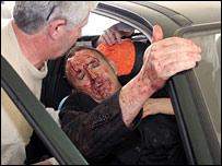 أحد المصابين في تفجيرات ألبانيا يصل المستشفى بسيارة