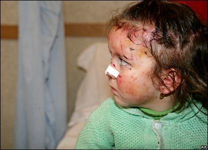 Injured child at hospital