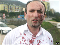 Injured man in Tirana on 15 March