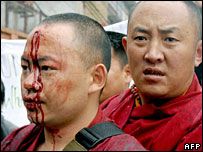 Injured Tibetan protestors in Kathmandu