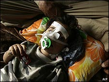 Ghazi Askar,4, lies in a Sadr City hospital on 31 March after being injured in the fighting
