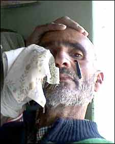 man being treated with leeches in Kashmir
