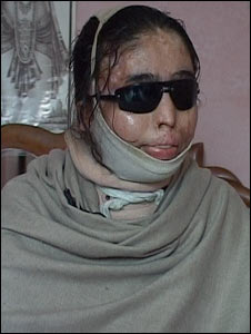 Renu, acid attack victim in Delhi (Pic: Sunita Thakur)