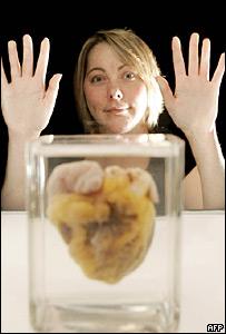 Una mujer mira su coraz�n luego de recibir un transplante