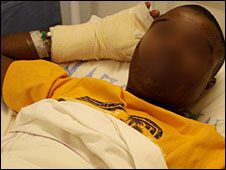 """Tendai"" with bandages on his arms in hospital"