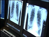 X-rays being shown on high resolution computer screens