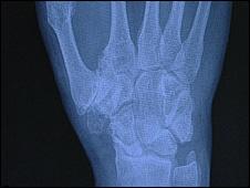 Thumb X-ray
