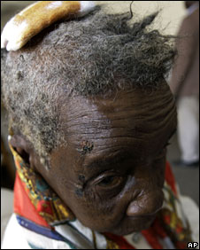 Anna Satiya, 84, shows an injury sustained during an attack by suspected Zanu-PF supporters, in Gutu, south of Harare, 22 April 2008