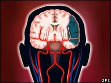 A stroke graphic. Pic caption: P.Marseaud, ISM, Science Photo Library