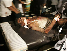 Injured survivor of bus blast is wheeled into Kalubowila hospital in Colombo - 25/4/2008
