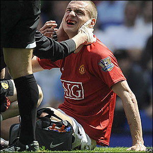 Nemanja Vidic receives treatment to his injured mouth