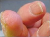 Сейчас нельзя догадаться, что Ли Спивак срезал себе кончик пальца