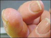 El nuevo dedo de Lee Spievak