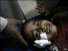 A boy injured in fighting in Baghdad is treated by medics on 1 May 2008