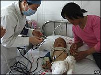 Un niño infectado con Enterovirus 71 (EV71) es atendido en un hospital de China