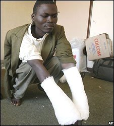Injured opposition supporter