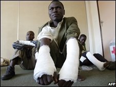 MDC supporters who said they had been beaten by pro-government youths