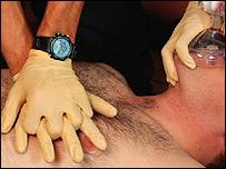 Paciente recibiendo tratamiento de emergencia.