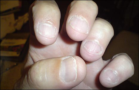 how to stop fingers stinging after biting