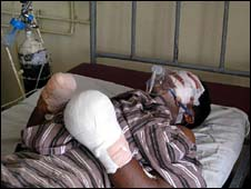 Injured man in hospital after Colombo blast, 16 May 08