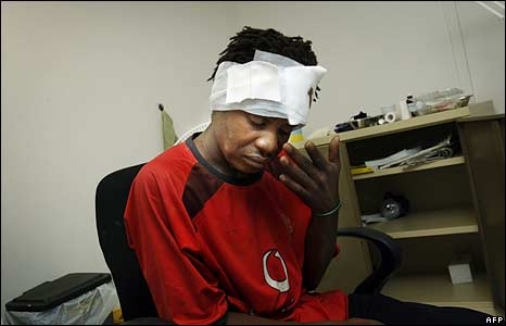 A wounded Mozambican national is treated in Johannesburg on 18 May 2008