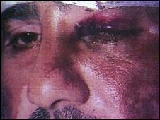 Habib Khan after an assault