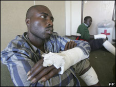 Wounded opposition supporters in Zimbabwe