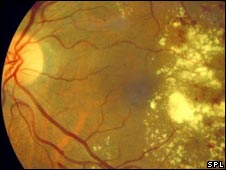 The damaged eye of a diabetic. Photo Credit: ISM/SPL