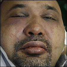 The bruised face of Keith Noyahr