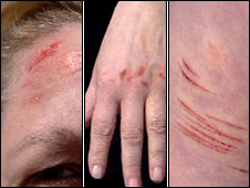 Anne Moffat's injuries to her head, hand and leg (Pictures by BBC Scotland)