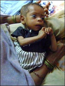 Roshni - an underweight baby in India