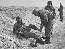 A soldier with trench foot in the Korean War