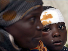 Victims of an attack by suspected Zanu-PF supporters in May