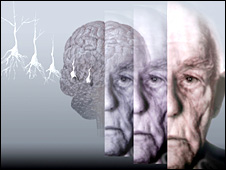 Computer artwork showing the brain of an elderly man affected by Alzheimers disease