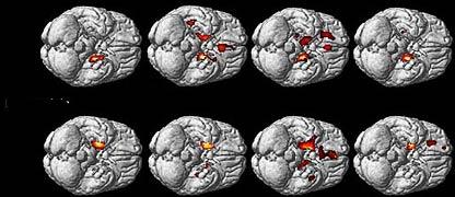 Diferencias en la amígdala entre hombres y mujeres homosexuales y heterosexuales.