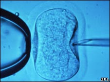 Sperm injected into egg in the laboratory