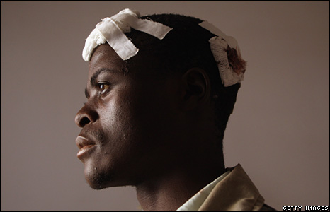 An opposition party worker waits for treatment at a clinic in Harare, 26 June 2008
