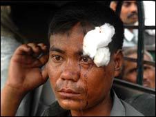 injured man after Assam blast, 29 June