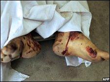 Suicide bomber's feet