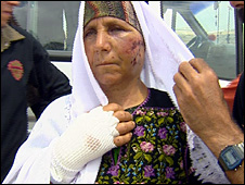 Palestinian peasant Thamam al-Nawaja after beating by settlers from Susia