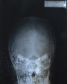 X-ray, Picture by Gary Whittle