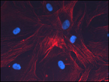 Human mesenchymal stem cells from bone marrow