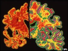 Scan of Alzheimer's brain