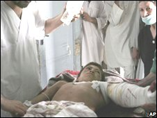 Afghan boy, who was allegedly wounded by coalition airstrikes in Shindand district, is treated in hospital 17 July 2008