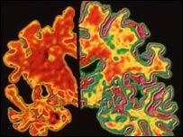 Escáner de cerebro con Alzheimer