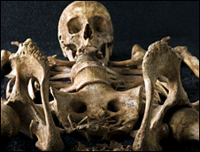 Skeleton (Museum of London/Wellcome Collection)