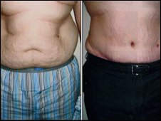 Jamie's stomach before and after surgery.