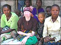 Mujer albina de Tanzania rodeada por su familia