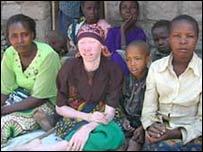 Альбинос в группе африканцев